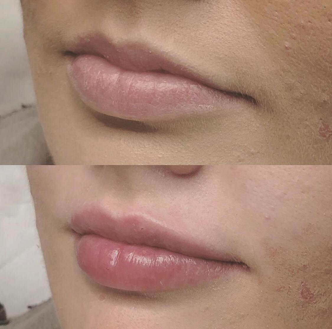 No Needle Dermal Filler | Before and After Photos